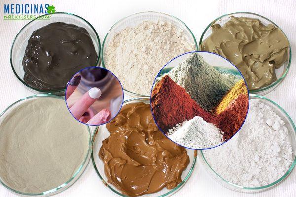 Arcilla medicinal, tipos de arcillas utilizadas en terapia