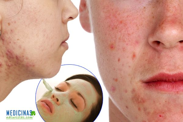 be-acne-hombres-mujeres.jpg