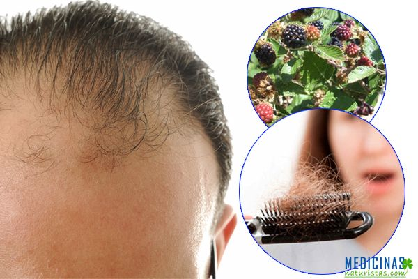 Caída de cabello, alopecia, como evitar la alopcia de manera natural