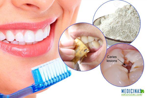 limpieza dental, dientes picados, caries, sarro