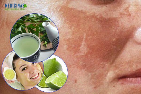 Manchas en la piel, recomendaciones naturales