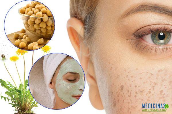 Pecas en la piel, recomendaciones naturales
