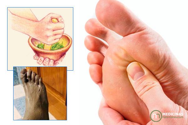 Neuroma de Morton dolor y ardor en los pies