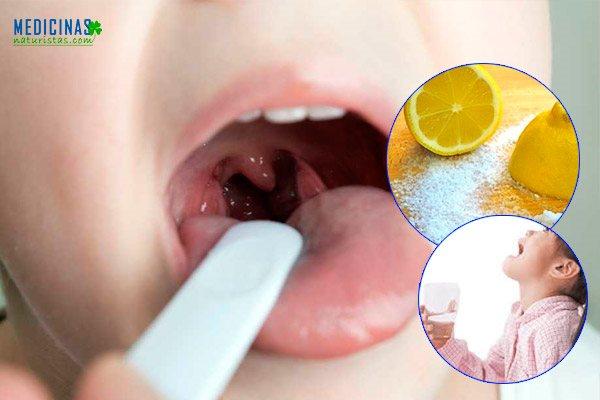 Anginas inflamadas en niños, tipos y remedios caseros