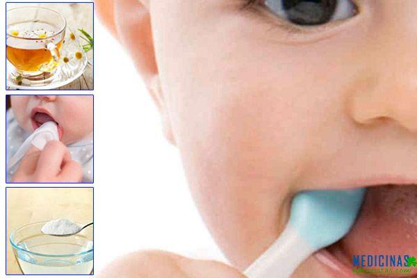 Gingivitis infantil, remedios para desinflamar las encías