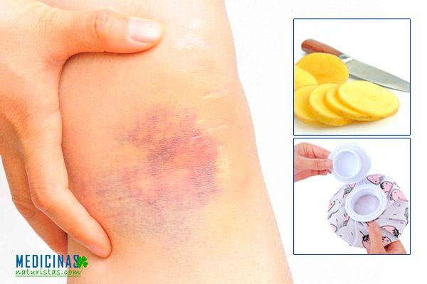 Hematomas, moretones en la niñez, causas y tratamientos