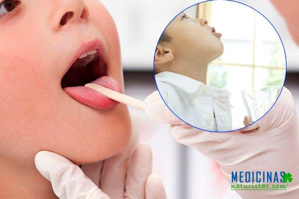 Laringitis infantil remedios caseros para el dolor de garganta