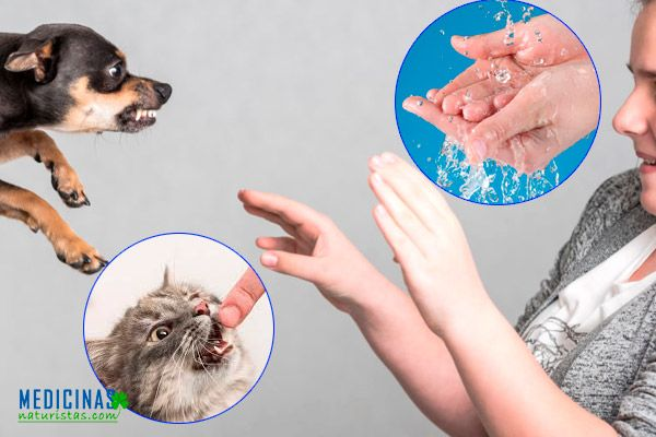 Mordeduras más comunes de animales a niños
