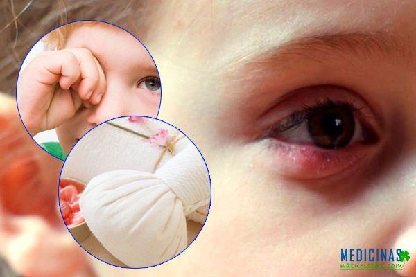 Orzuelo en niños y bebes remedios seguros