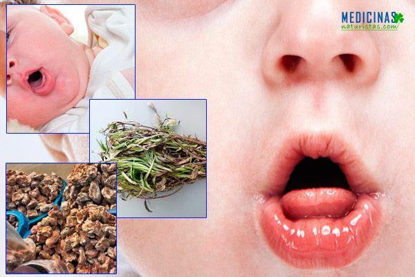 Tipos y tratamientos para la TOS infantil