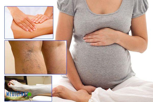 Varices durante el embarazo recomendaciones naturales