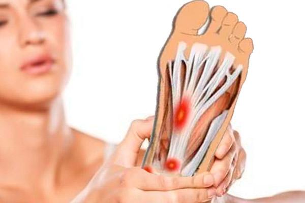 Fascitis plantar consigue alivio para el dolor de pies
