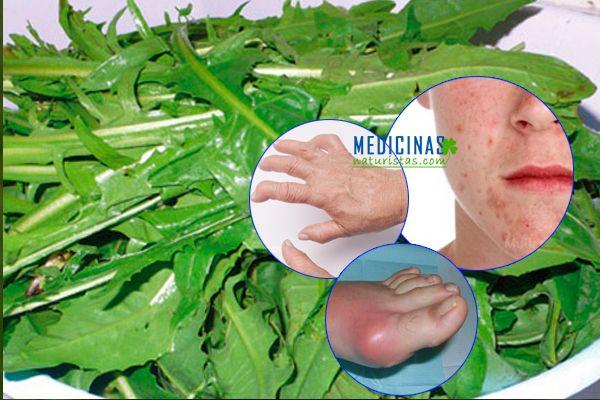 Achicoria propiedades medicinales