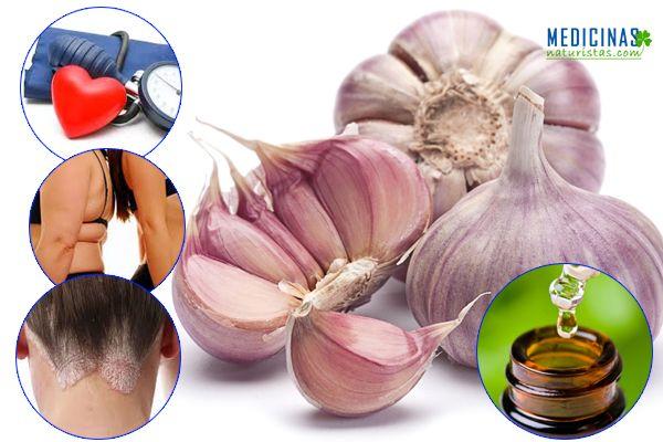 Ajos 77 beneficios para la salud, poderoso antibiótico natural