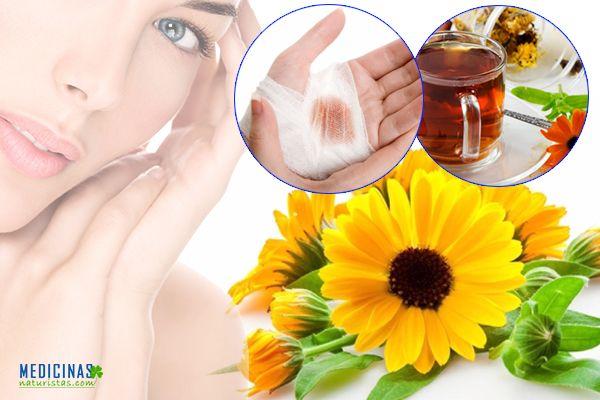 CALÉNDULA una maravilla contra enfermedades de la piel