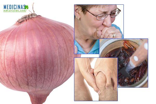 Cebolla descubre todos sus beneficios para la salud