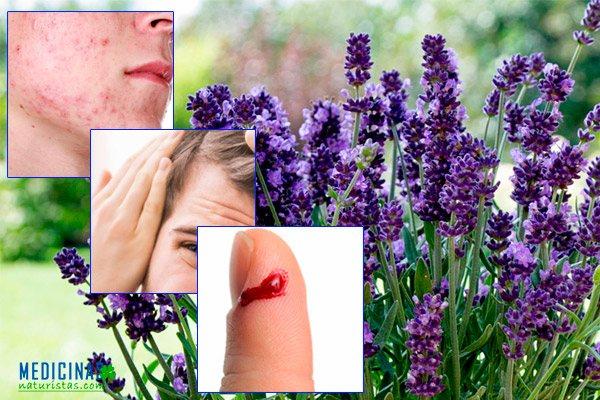 Lavanda para desinfectar heridas y eliminar el acné