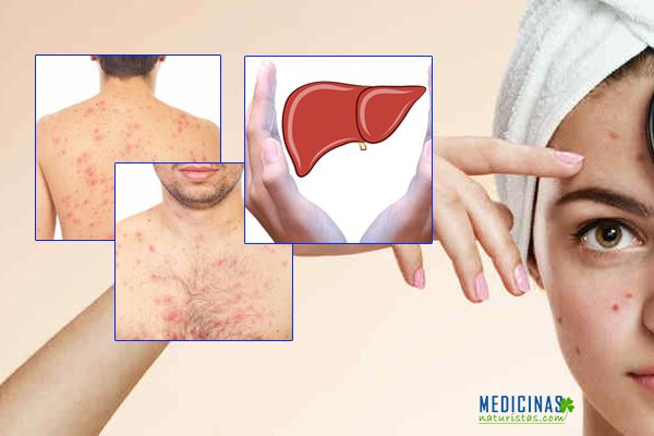 Acné tipos y causas hepática, hormonal, intestinal