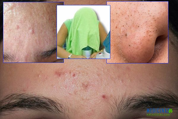 re-acne-comedoniano.jpg