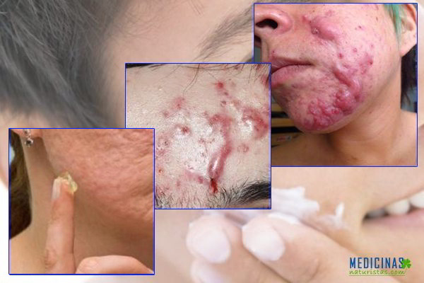 Acné Conglobata, el acné que te desfigura, remedios naturales