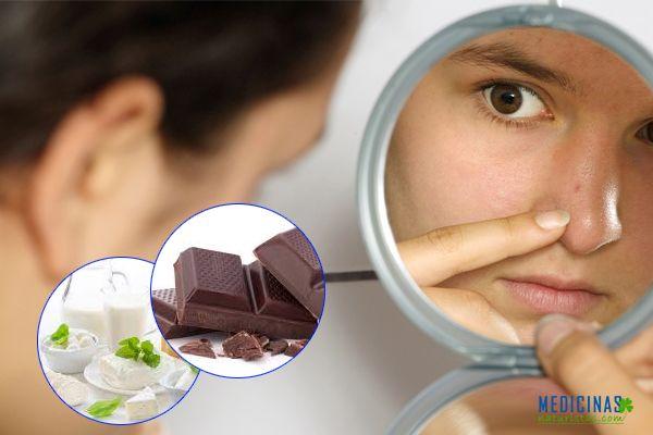 Acné mitos y verdades ¿Qué causa realmente acné?