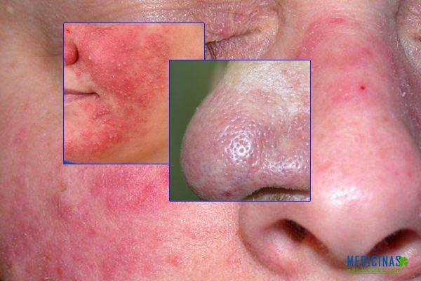 Acné Rosácea (cuperosis), recomendaciones y posibles tratamientos