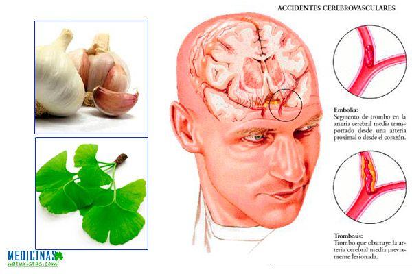 Accidente Cerebro Vascular ACV riegos, prevención