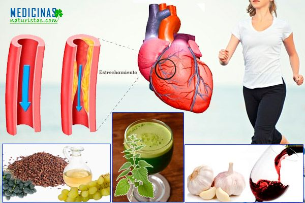 Arteriosclerosis como limpiar las arterias