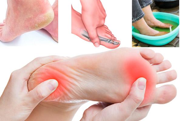 Dolor de pies, alivio según TU tipo de dolor