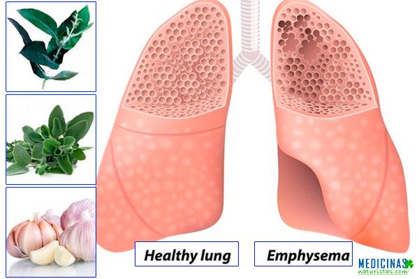 Enfisema pulmonar tratamiento y alternativas naturales