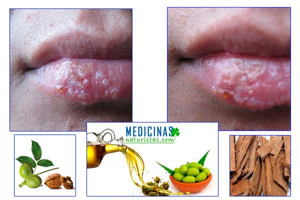 Herpes síntomas y tratamientos paliativos