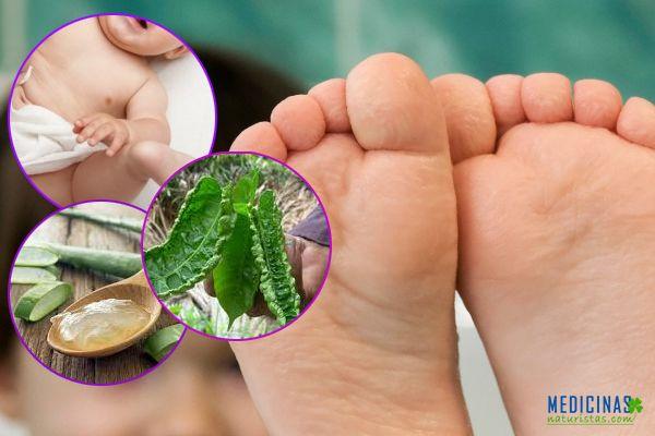 Hongos remedios caseros para proteger a los niños