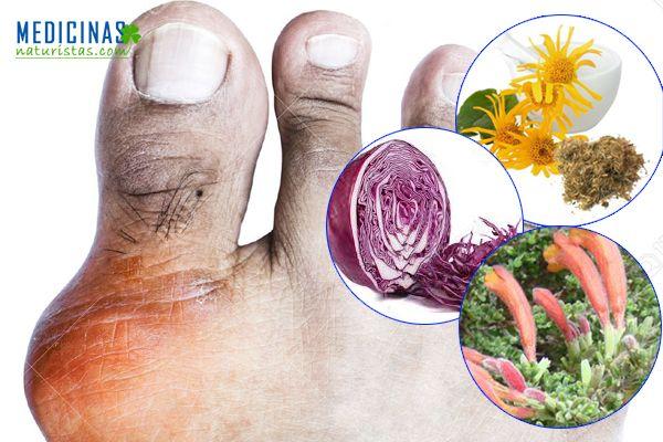 Gota mantén los niveles de ácido úrico bajo control