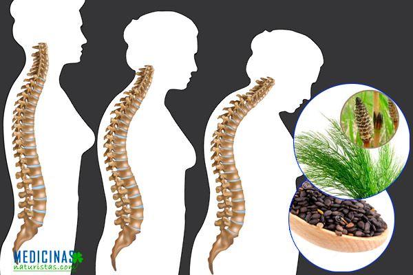 re-osteoporosis.jpg