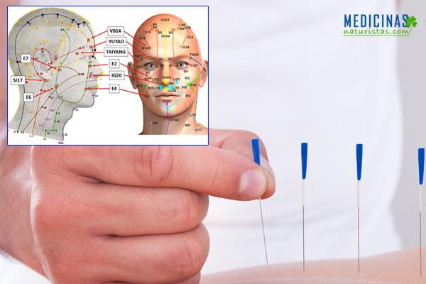 Acupuntura para parálisis facial, puntos, síntomas y signos
