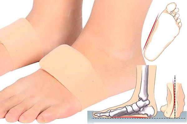 PIE PLANO y su dolor en el talón y planta del pie