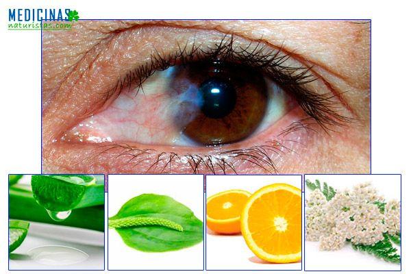 Pterigion, como eliminar la carnosidad en los ojos