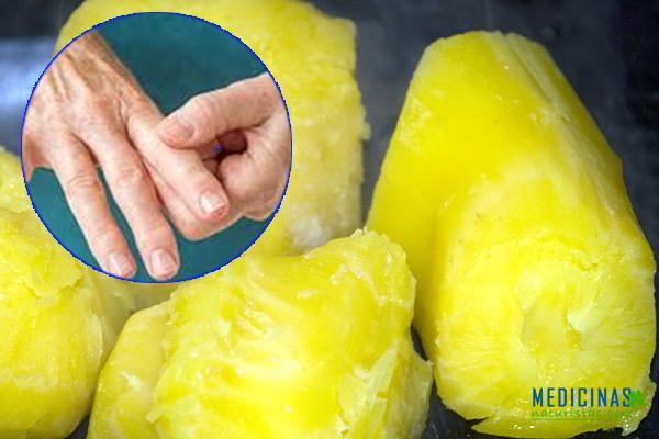 Arracacha en salsa, ideal para la artritis