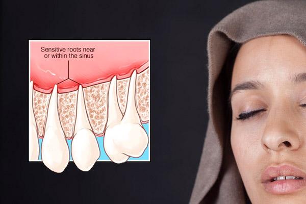 Sinusitis maxilar por lesiones dentales