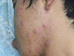 acne nodular