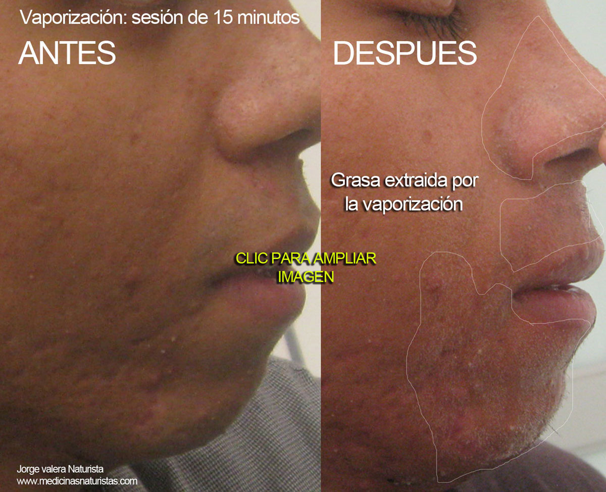acne vaporizacion