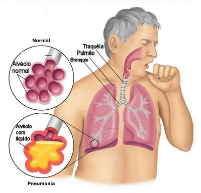 Diarrea con sangre en adultos causas